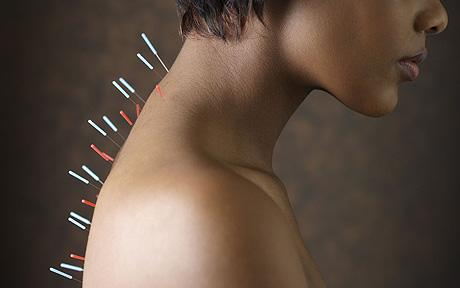 Acupuncture 1248178c