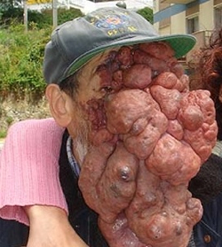 Tumor-1